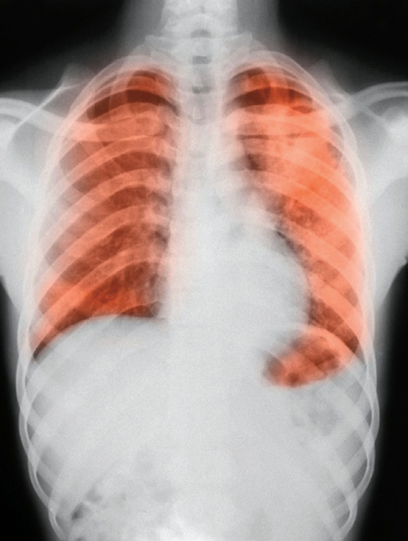 Bei Symptomen wie länger bestehendem Husten, Nachtschweiß, Fieber und Gewichtsabnahme sollten Ärzte auch an Tuberkulose denken, rät das RKI. Foto: Science Photo Library/Camazine, Scott