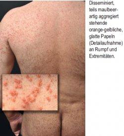 Disseminiert, teils maulbeer - artig aggregiert stehende orange-gelbliche, glatte Papeln (Detailaufnahme) an Rumpf und Extremitäten
