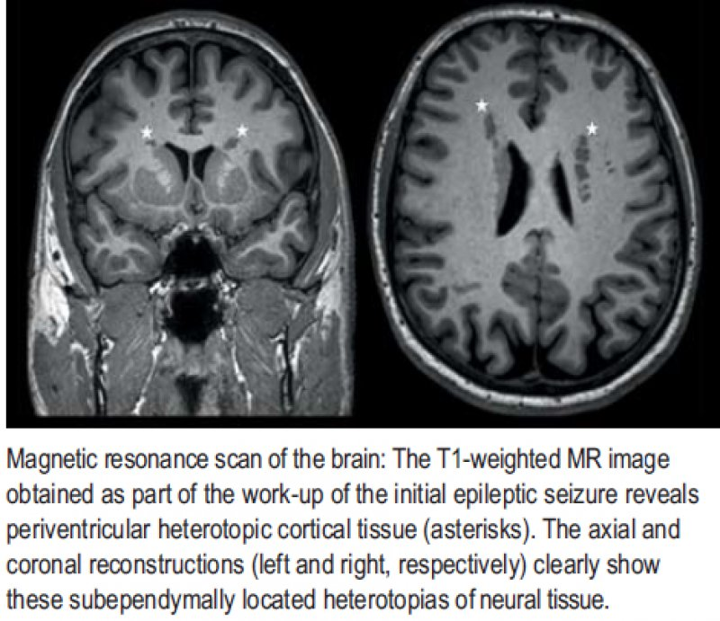 Magnetic resonance scan of the brain: The T1-weighted MR image obtained as part of the work-up of the initial epileptic seizure reveals periventricular heterotopic cortical tissue (asterisks)