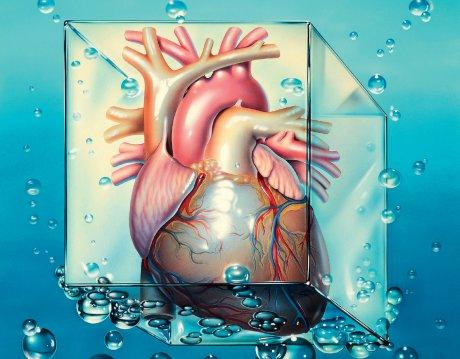 Akuter Myokardinfarkt