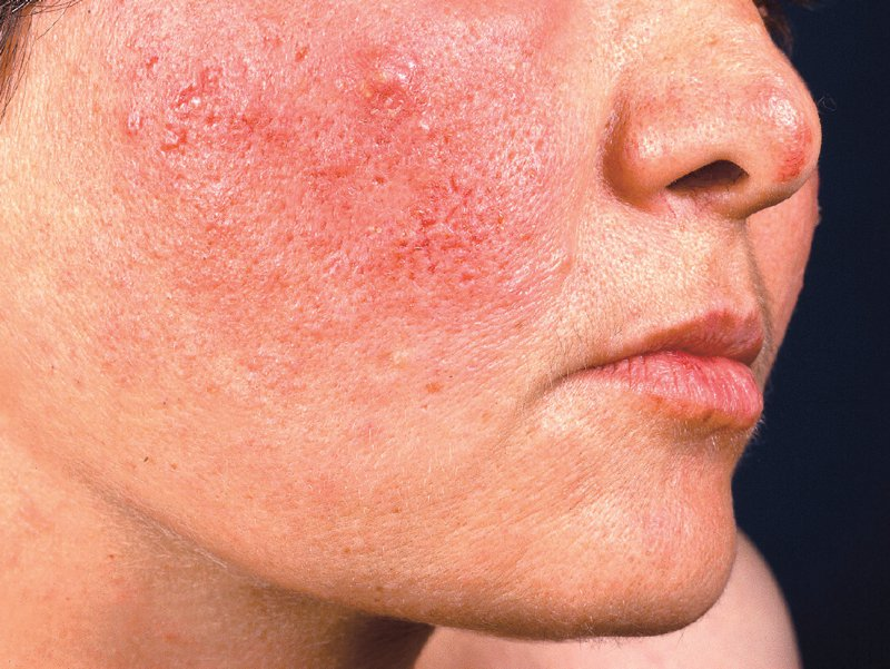 Typische Hautrötung und Knötchenbildung im Gesicht einer Rosacea-Patientin. Foto: picture alliance