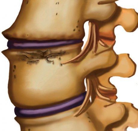 Konservative Behandlung traumatischer Brust- und Lendenwirbelkörperfrakturen