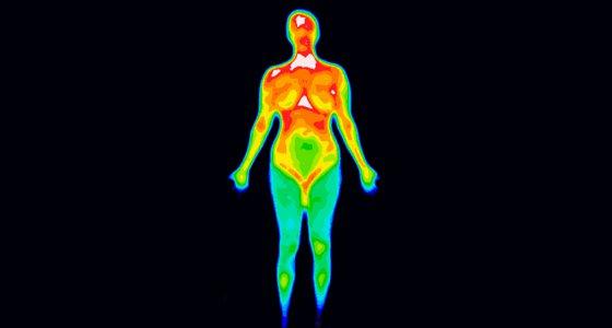 Thermographisches Bild der Front des ganzen Körpers einer Frau mit dem Foto, das unterschiedliche Temperaturen im Bereich von Farben von der blauen darstellenden Kälte zur roten darstellenden heißen zeigt, die Gelenkentzündung anzeigen kann.
