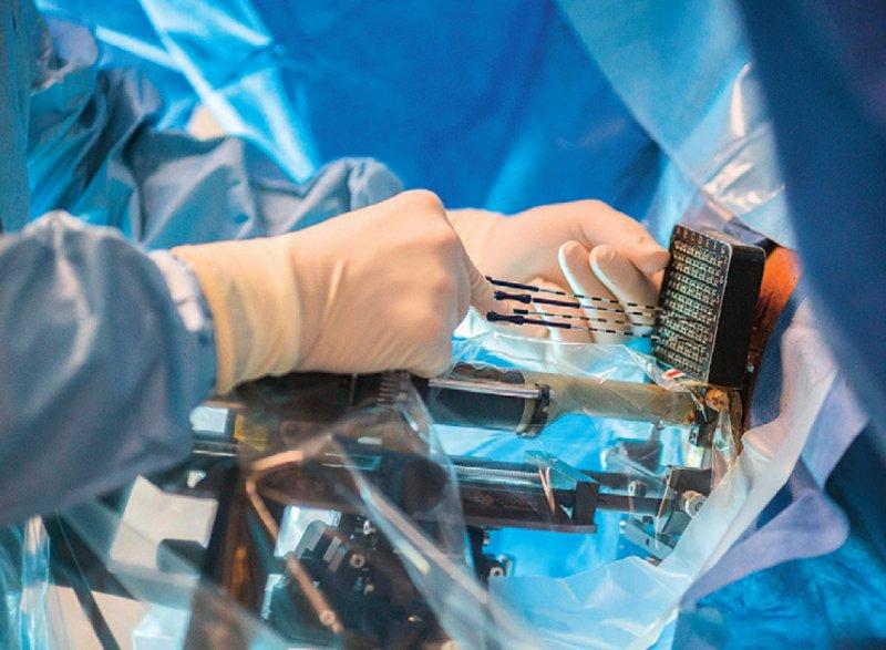 Über spezielle Nadeln werden bei der LDR-Brachytherapie kleine radioaktive Partikel dauerhaft in die Vorsteherdrüse eingebracht, um das Karzinom vor Ort gezielt zu bestrahlen. Foto: picture alliance