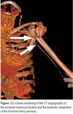3D volume rendering of the CT angiography of the proximal humerus fracture and the traumatic dissection of the brachial artery (arrows)