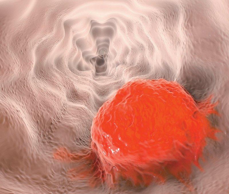 Speiseröhrenkrebs: Die aktualisierte Leitlinie kann bis zum 21. November von Experten, Betroffenen und Interessierten kommentiert werden. Foto: Kateryna_Kon/stock.adobe.com