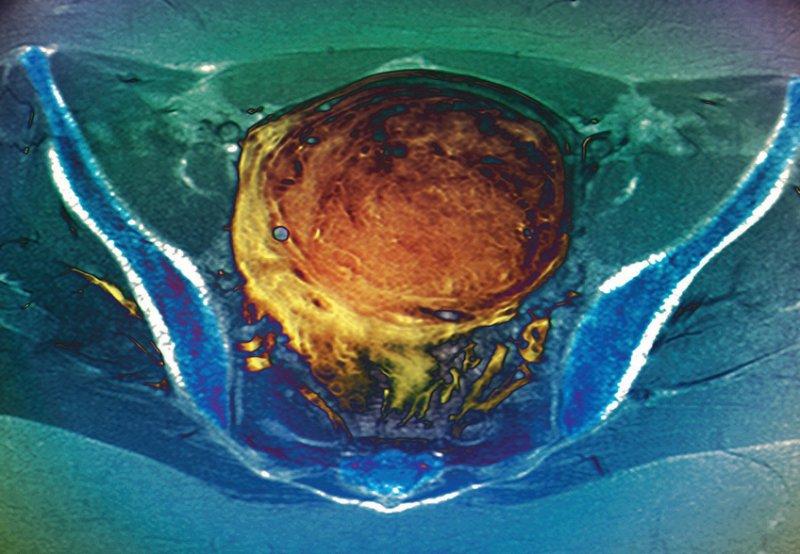 Patientinnen mit Uterusmyomen stehen im Mittelpunkt der neuen Studie. Foto: Science Photo Library/Zephyr