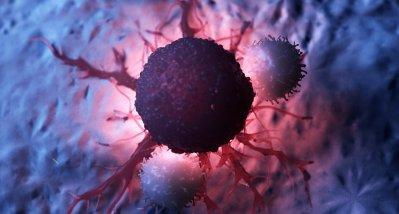 Score könnte frühzeitige Entlassung nach CAR-T-Zell-Therapie ermöglichen