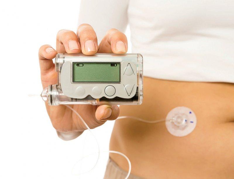 Für die Zertifizierung von Hochrisikoprodukten wie Insulinpumpen wird eine zusätzliche Bewertung durch ein Expertenkomitee eingeführt, das bei der EUKommission angesiedelt ist. Diese Produkte müssen zudem in klinischen Tests ihre Wirksamkeit und Sicherheit belegen. Foto: Click and Photo/iStock