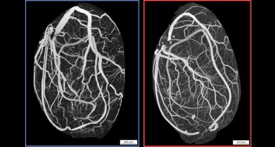 Repräsentative Micro-CT Bilder zeigen das reduzierte Hoden- und Gefäßvolumen einer 60 Wochen alten ApoE/LDL-Rezeptor-Doppel-Knockout-Maus (KO, rot) im Vergleich zu dem gleichaltrigen Wildtyp (WT, blau). /Justus-Liebig-Universität Gießen
