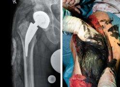 Ein Extremfall einer systemischen Metallose nach endoprothetischer Versorgung