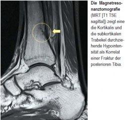 Die Magnetresonanztomografie (MRT [T1 TSE sagittal]) zeigt eine die Kortikalis und die subkortikalen Trabekel durchziehende Hypointensität als Korrelat einer Fraktur der posterioren Tibia