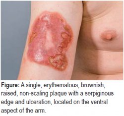 A single, erythematous, brownish, raised, non-scaling plaque with a serpiginous edge and ulceration, located on the ventral aspect of the arm