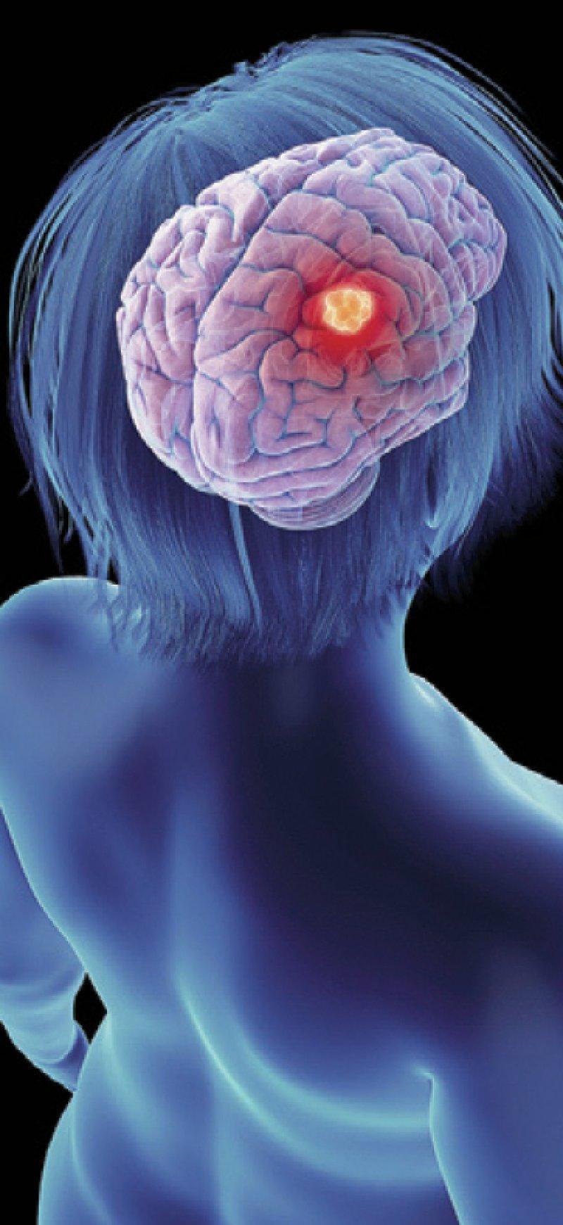 Foto:Science RF/stock.adobe.com