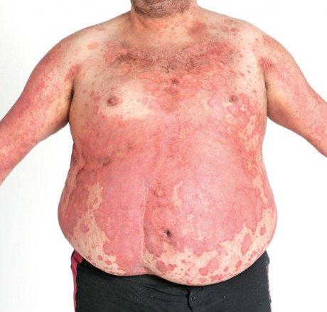 Schuppenflechte und Arteriosklerose