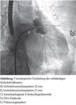 Fluroskopische Darstellung der vollständigen Vorhofohrokklusion