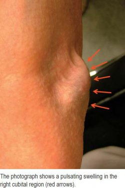 The photograph shows a pulsating swelling in the right cubital region (red arrows).