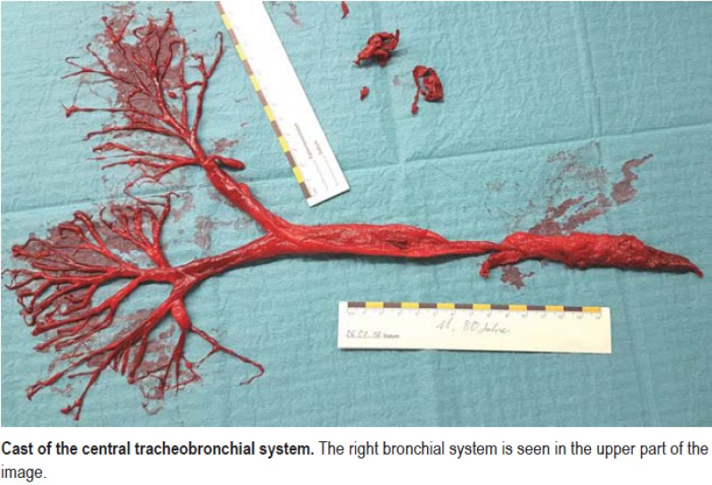 Cast of the central tracheobronchial system. The right bronchial system is seen in the upper part of the image.