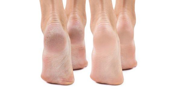 Zwei Fußpaare laufen nebeneinander - eines mit Hornhaut an der Ferse. /llhedgehogll, adobe.stock.com