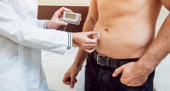 Künstliches Pankreas verbessert Blutzuckerkontrolle bei Diabetes Typ 1