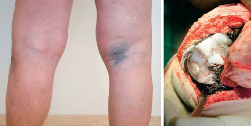 Skin Discoloration Following Total Knee Replacement