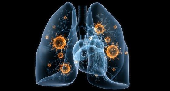 Infektionen einer Lunge /Sebastian Kaulitzki, AdobeStock.com