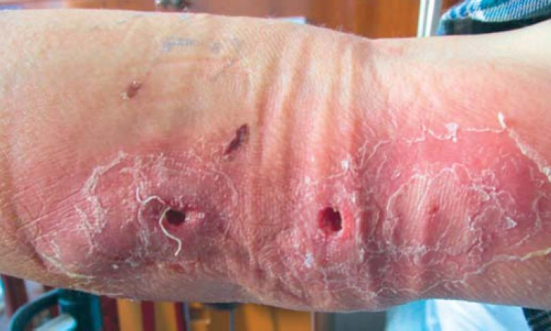 Primary Cutaneous Nocardiosis