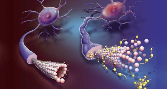 Darstellung eines gesunden Neurons (links), das ein Mikrotubuli und Tau-Proteine (grün) zeigt. Auf der rechten Seite ist die neuronale Degeneration mit dem Aufbau von hyperphosphorylierten Tau-Proteinen (gelb) dargestellt. / picture alliance