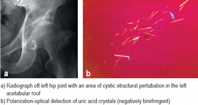 a) Radiograph oft left hip joint with an area of cystic structural pertubation in the left acetabular roof. b) Polarization-optical detection of uric acid crystals (negatively birefringent)