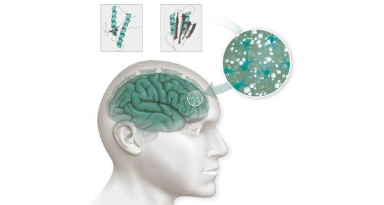Prionen-Erkrankungen werden durch die fehlerhafte Faltung des Prion-Proteins (PrP, rechts) ausgelöst. Sie sammeln sich im Gehirn an. /picture alliance