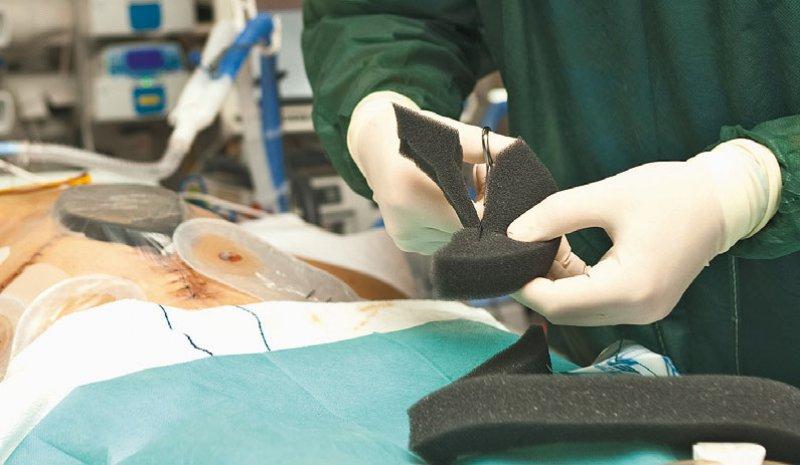 Untersucht wurden Wunden infolge einer Operation vor allem in der Geburtshilfe, in der Bauch-, Gefäßund Herzchirurgie sowie in der Endoprothetik. Foto: picture alliance/dpa Themendienst