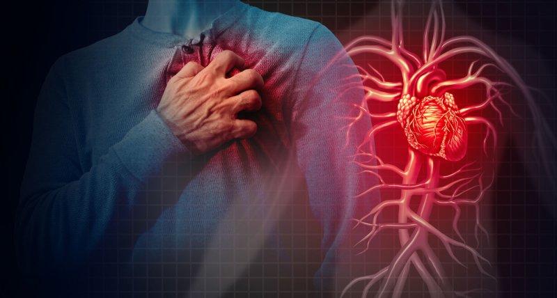 COVID-19: Viele Schwerstkranke haben lebensgefährliche Herzmuskelschäden