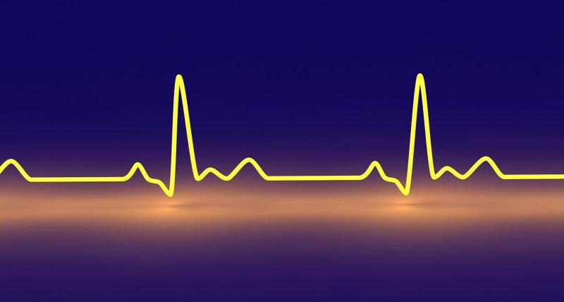 Herzinsuffizienz: Krankheitslast steigt in Ostdeutschland stärker als im Westen