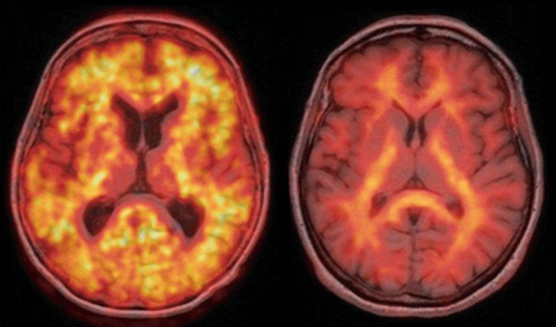 Amyloid-Plaques in vivo: Zwei Betroffene mit positiver MCI-Testung erhalten eine Amyloid-PET-Aufnahme, die jeweils auf das zugehörige MRT (in Grauskala) überlagert zu sehen ist: Links zeigt die massive Traceranreicherung in der Hirnrinde (gelb) einen pathologischen Befund, der auf eine Alzheimer-Krankheit schließen lässt. Rechts zum Vergleich ein Normalbefund, der im Hinblick auf diese Erkrankung Entwarnung gibt. Foto: Universitätsklinikum Leipzig/Prof. Dr. O. Sabri