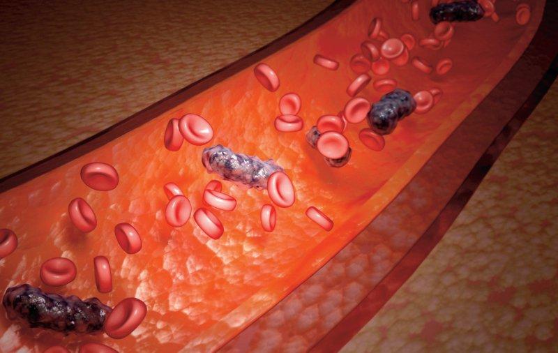 Der Nachweis von Krankheitserregern im Blut diente traditionell zur Definition einer Sepsis. Laut aktueller Konsensusdefinition handelt es sich um eine lebensbedrohliche Organdysfunktion aufgrund einer inadäquaten Wirtsantwort auf eine Infektion. Foto: Your Photo Today