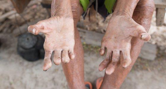 Ein Leprakranker zeigt seine Hände. /frank29052515, Stock.adobe.com