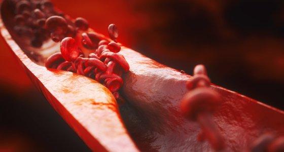 Nahaufnahme einer Atherosklerose - 3D-Rendering /crevis, stock.adobe.com