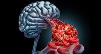Risiko von Sinusvenenthrombose nach COVID-19 viel höher als nach Impfung