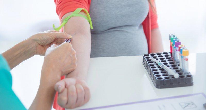 Einer schwangeren Frau wird Blut abgenommen. /gamelover, stockadobecom