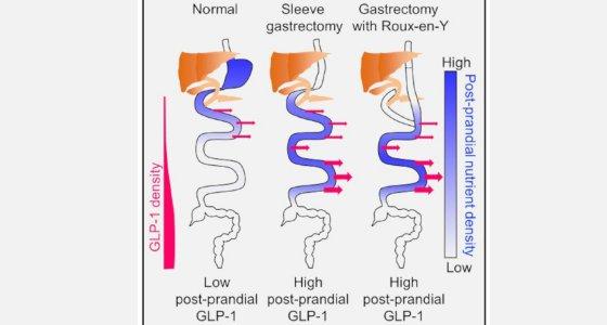 Nach dem bariatrischen Eingriff wird die Nahrung vorwiegend im unteren Dünndarm gespalten. Ursache ist die Darmumlagerung. /Larraufie et al Cell Reports