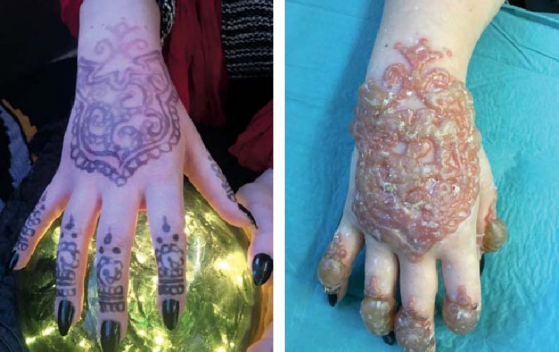 Henna Tattoo Schwarz Allergie: Bullöse Kontaktdermatitis Nach Henna-Tattoo
