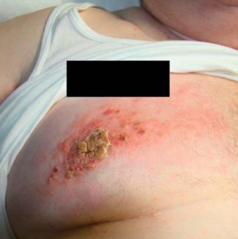 Erysipelas carcinomatosum