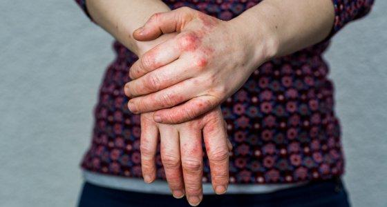 Junge Frau mit trockenen und gestressten roten, dyshidrotischen, ekzembedeckten Händen. //oscity, stock.adobe.com