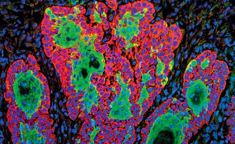 Plattenepithelkarzinom: Proliferierende eosinophile Verbände mit unterschiedlich differenzierten Keratinozyten infiltrieren fingerförmig die unterschiedlichen Schichten der Dermis oder auch Subkutis. Foto: picture alliance