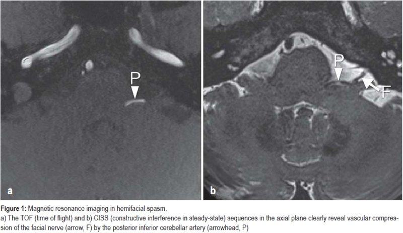 Magnetic resonance imaging in hemifacial spasm