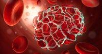 Antiphospholipid-Syndrom: Rivaroxaban keine Alternative zu Vitamin-K-Antagonisten