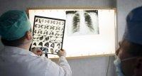 Tuberkulose-Infektionen werden meist im Ausland erworben