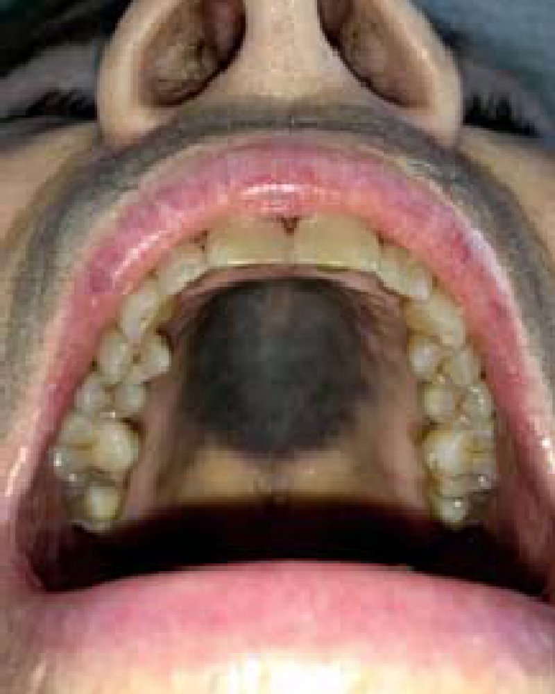 A Large Gray–Blue Macule on the Hard Palate as an Adverse Effect of Imatinib