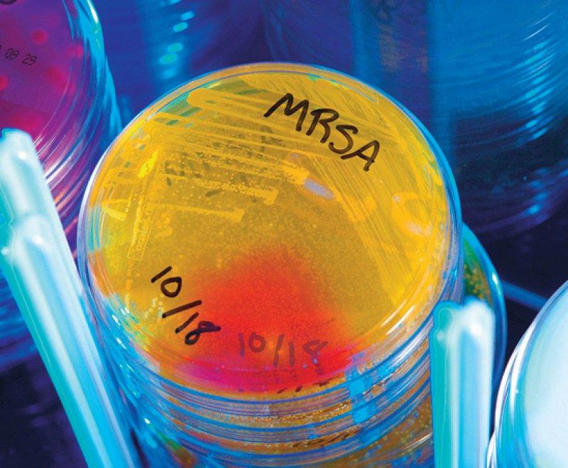 Zur Sanierung von MRSA-Erregern fehlen in vielen Pflegediensten Kompetenzen. Foto: Science Photo Library/CDC