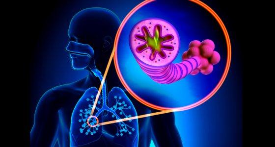 Entzündliche Reaktionen können Astham in den Bronchien verursachen. /decade3d, stock.adobe.com